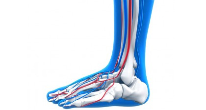 Accessory-Navicular-Syndrome-Los-Angeles-Foot-and-Ankle-Surgeon-2-new