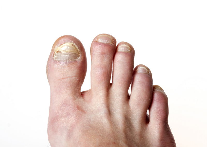 Laser Nail Fungus Treatment - Foot & Ankle Institute of the West