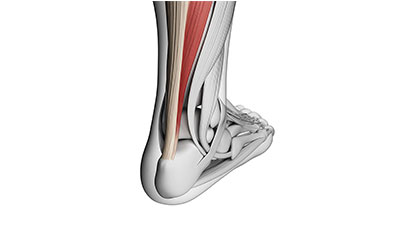 Achilles-Tendonitis-Los-Angeles-Foot-and-Ankle-Surgeon-2