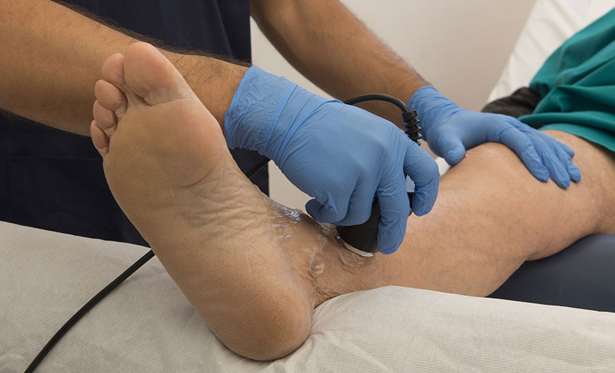 ESWT—Los-Angeles-Foot-and-Ankle-Surgeon1