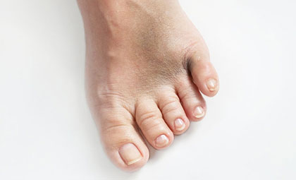 Fractures-Los-Angeles-Foot-and-Ankle-Surgeon-1-1