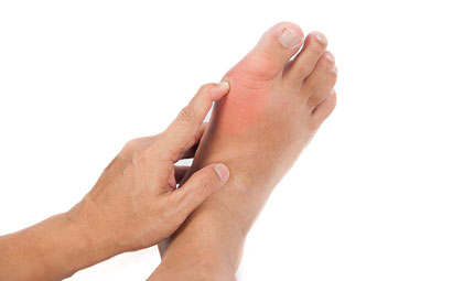 Gout-Los-Angeles-Foot-and-Ankle-Surgeon-1-1