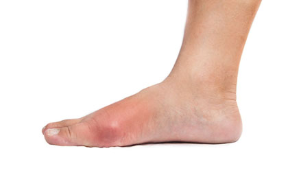 Gout-Los-Angeles-Foot-and-Ankle-Surgeon-2