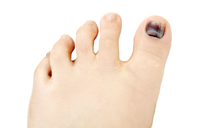 Hammertoes-Los-Angeles-Foot-and-Ankle-Surgeon-1-1