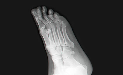 Hammertoes-Los-Angeles-Foot-and-Ankle-Surgeon-2