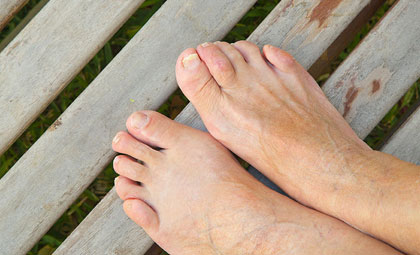 Ingrown-Toenails-Other-Nail-Issues-Los-Angeles-Foot-and-Ankle-Surgeon-1-1