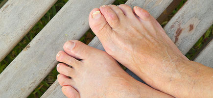 Ingrown Toenails & Other Nail Issues