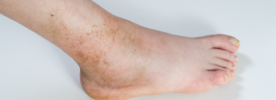 When Should You See A Doctor For An Ankle Sprain?