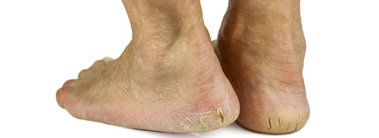 Treatments And Prevention Of Cracked Heels