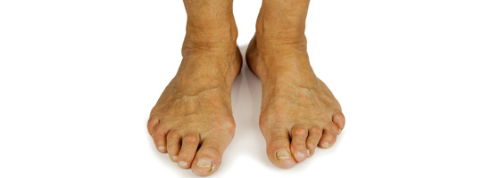 4 Bunion Treatment Tips
