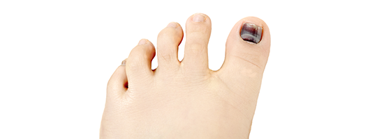 3 Common Toenail Problems