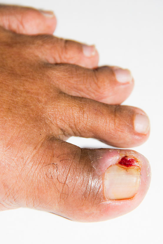 Ingrown Toenails & Other Nail Issues - Los Angeles Foot and Ankle ...