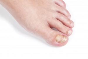 Керосин при грибке ног