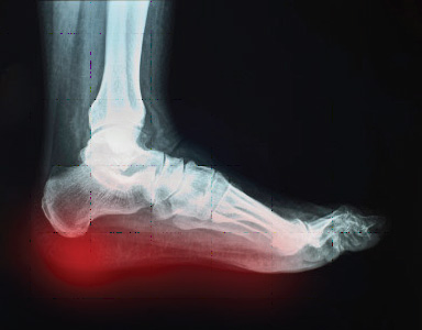 Heel-Pain-Los-Angeles-Foot-and-Ankle-Surgeon-2