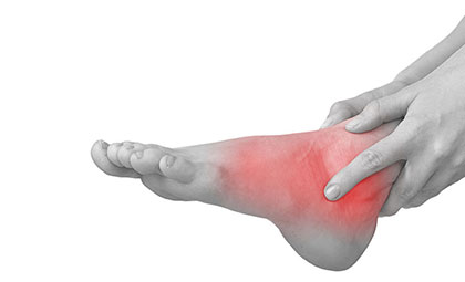 Ankle-Sprains-Instability-Los-Angeles-Foot-and-Ankle-Surgeon-2-new