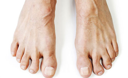 Flat-Feet-Los-Angeles-Foot-and-Ankle-Surgeon-1
