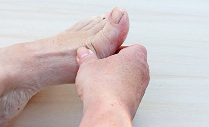 Ganglion-Cysts-Los-Angeles-Foot-and-Ankle-Surgeon-1-1