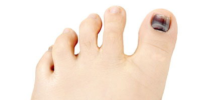 Hammertoes-Los-Angeles-Foot-and-Ankle-Surgeon-1