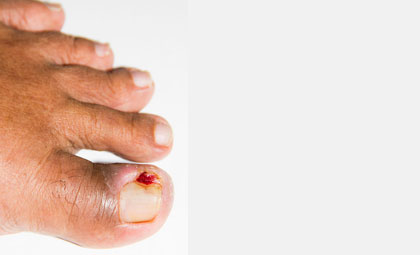 Ingrown-Toenails-Other-Nail-Issues-Los-Angeles-Foot-and-Ankle-Surgeon-2