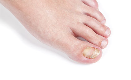 Laser-Nail-Fungal-Treatment—Los-Angeles-Foot-and-Ankle-Surgeon–(2)