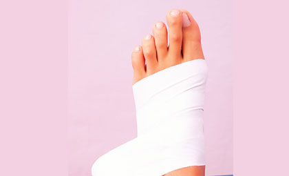 Mortons-Neuroma-Los-Angeles-Foot-and-Ankle-Surgeon-1