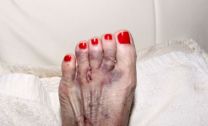 Mortons-Neuroma-Los-Angeles-Foot-and-Ankle-Surgeon-2-2
