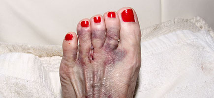 Mortons-Neuroma-Los-Angeles-Foot-and-Ankle-Surgeon-2