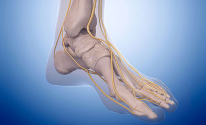 Peripheral-Neuropathy-Los-Angeles-Foot-and-Ankle-Surgeon-1