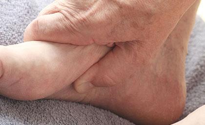 Plantar-Fasciitis-Los-Angeles-Foot-and-Ankle-Surgeon-2