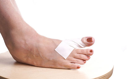 Pressure-Ulcers-Los-Angeles-Foot-and-Ankle-Surgeon-2