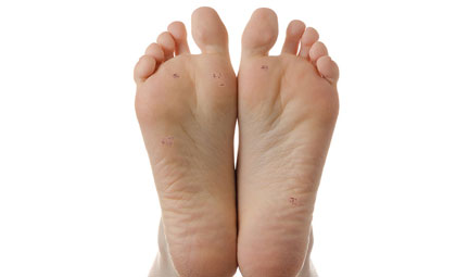 Warts-Los-Angeles-Foot-and-Ankle-Surgeon-2